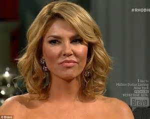 Brandi Glanville admits too many fillers and some bad