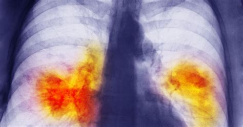 Lung cancer deaths so high 'because GPs failing to spot