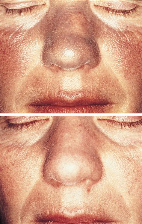 Amiodarone-Induced Pigmentation Resolves After Treatment